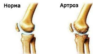 Что такое артроз плечевого сустава