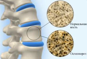 Симптомы и лечение остеопении