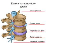 Чем опасна грыжа пояснично-крестцового отдела позвоночника