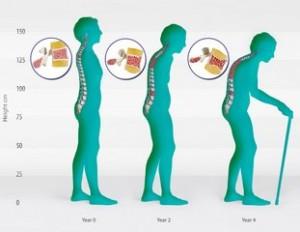 Остеопороз позвоночника: первые симптомы и лечение