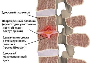 Методы лечения грыжи Шморля позвоночника