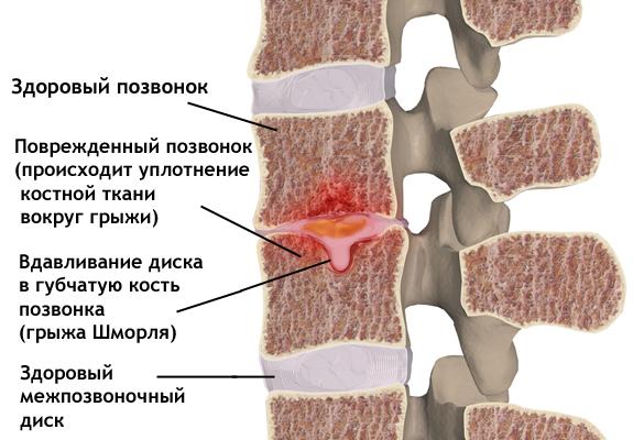 узлы шморля тел позвонков