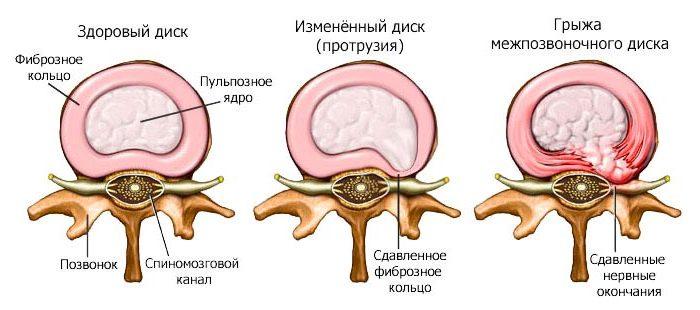 Лечение протрузий в шейн