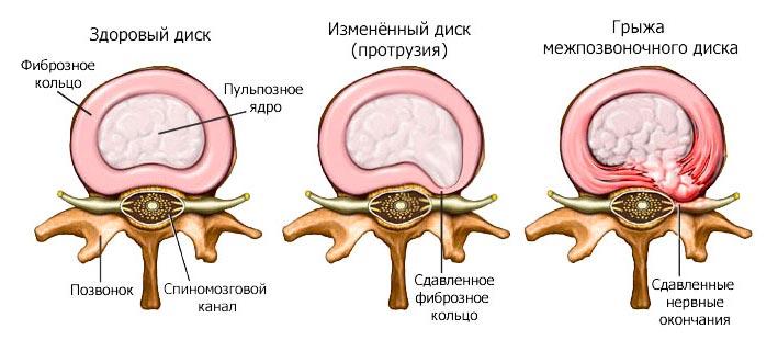 Как лечить протрузию диска шейного и поясничного отдела позвоночника