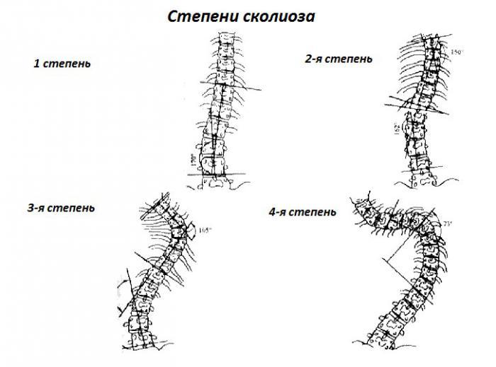 Степени искривления позвоночника (сколиоза): фото