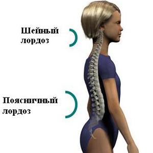 Симптомы и лечение шейного и поясничного лордоза позвоночника