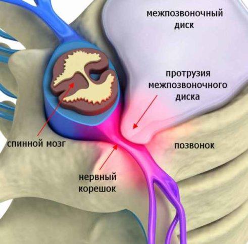 Дорзальные диффузные протрузии дисков лечение