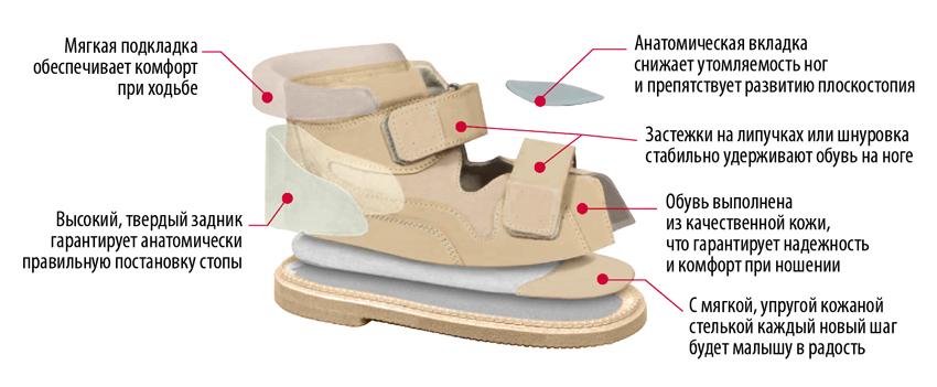 Особенности летней, зимней и домашней ортопедической обуви