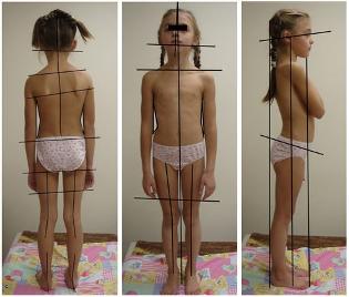 Почему у детей развивается сколиоз, и помогут ли гимнастика и массаж?