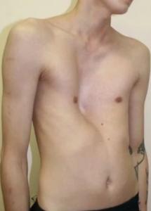 Какие причины деформации грудной клетки у детей и взрослых?