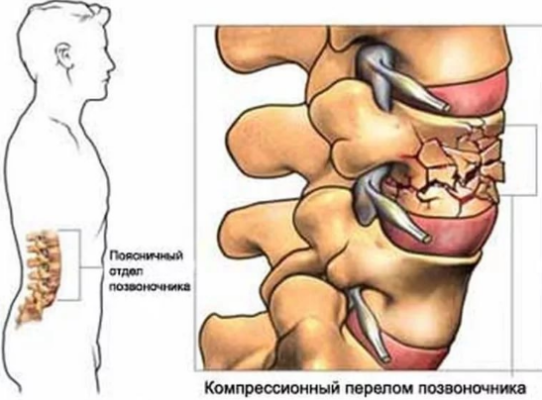 Что значит компрессионный перелом