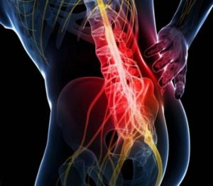 Какие симптомы опухоли позвоночника