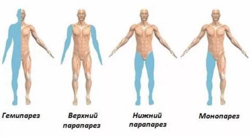 Виды тетрапареза