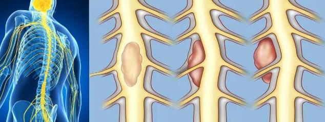 Почему образуются опухоли в позвоночнике, и когда нужно бить тревогу?