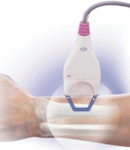 Процесс денситометрия костей