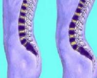 Гиперлордоз поясничного и шейного отдела позвоночника: лечение, симптомы и упражнения