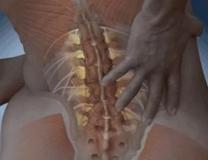 Антелистез тела позвонка: определение, степени, лечение и операция