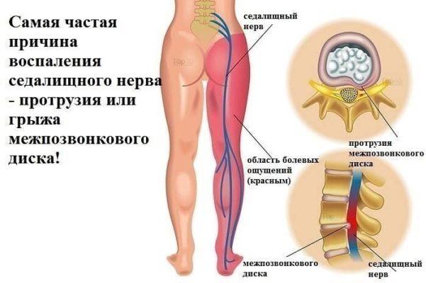 Причины воспаления седалищного нерва