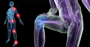 Для чего нужно укреплять кости и суставы