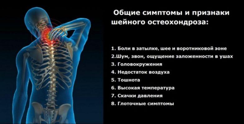 Симптомы хондроза шейного отдела позвоночника