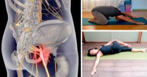 Лечение седалищного нерва дома: гимнастика, массаж, зарядка