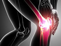 Ревматизм суставов у детей и взрослых: симптомы и лечение