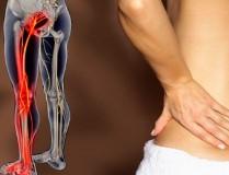 Защемление седалищного нерва: симптомы, какие уколы делают, лечение в домашних условиях