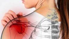 Причины развития плечелопаточного периартрита, симптомы и методы лечения заболевания