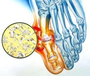 Что такое подагрический артрит
