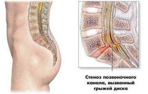 Особенности стеноза позвоночного канала шейного и поясничного отдела