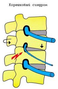 Использование Тексамена при спинных болях
