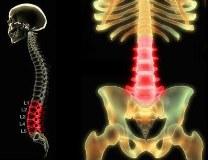 Субхондральный склероз позвоночника - что это такое, признаки и лечение