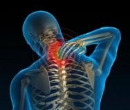 Симптомы и лечение хондроза шейного отдела позвоночника в домашних условиях