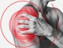 Артрит плечевого сустава - симптомы, лечение, народные методы, упражнения