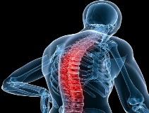 Болезнь Бехтерева у женщин и мужчин: симптомы, лечение, прогноз, диета