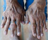 Подагрический артрит - симптомы, лечение, народные средства, рекомендации
