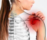 Плечелопаточный периартрит - симптомы, лечение, упражения, народные методы