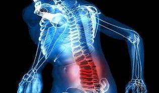 Причины защемления нерва в спине и как оказать первую помощь пострадавшему