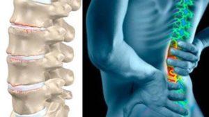 Основные причины дорсопатии пояснично-крестцового отдела позвоночника