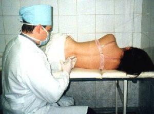 Как выглядит процесс блокады при грыже поясничного отдела и при остеохондрозе