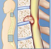 Киста в крестцовом и поясничном отделе позвоночника: симптомы, лечение, операция, в чем опасность, упражнения