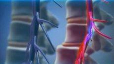 Ретролистез l5 позвонка - что это такое, степени болезни, лечение разных отделов позвоночника и профилактика