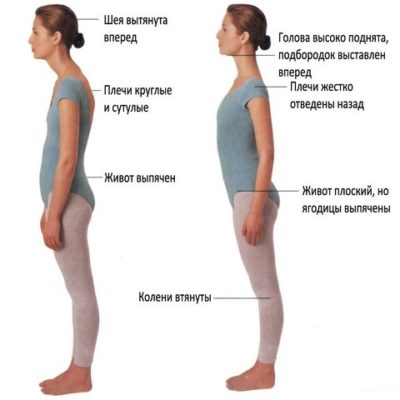 Почему появляется сутулость спины