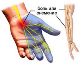 Симптомы проявления Цервикобрахиалгии