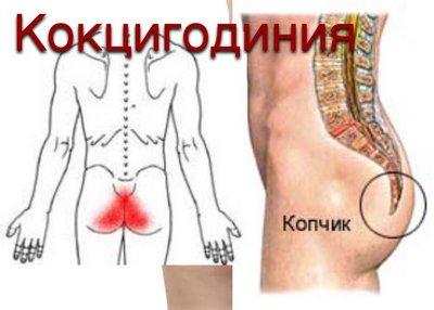 3 верных метода лечения кокцигодинии, симптомы у женщин, мужчин, что это за диагноз, причины и отзывы
