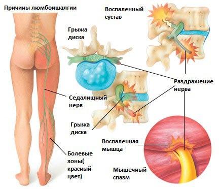 Причины люмбоишиалгии