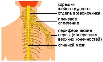 Цервикобрахиалгия— что это, код поМКБ 10