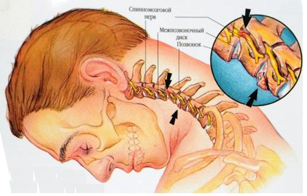 Цервикокраниалгия на фоне шейного остеохондроза: лечение, что это за диагноз, симптомы и диагностика