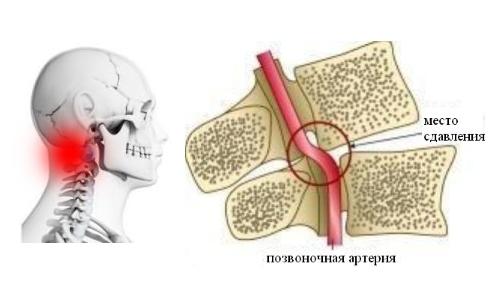 Симптомы цервикокраниалгии