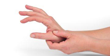 стенозирующий лигаментит кисти